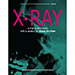 X-Ray by Ben Harris and Steve Shufton - Livre